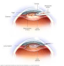 light streaks after cataract surgery cataract surgery dr gadgil eye clinic