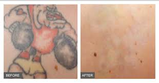 sydney laser tattoo removal clinics advanced bios qsr laser