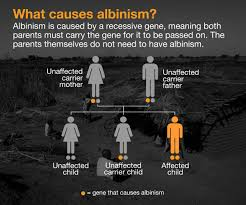What Causes Blindness In Humans What Is Albinism And What Causes It Malawi Al Jazeera