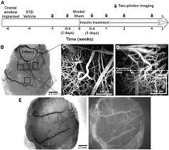 diabetes augments in vivo microvascular blood flow dynamics after