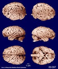 Gross Brain Anatomy Anatomy Notes Wrinkles And Folds On The Brain