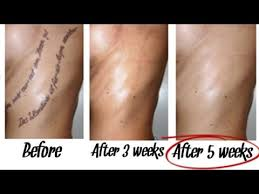 best way to remove tattoos naturally within 5 weeks youtube