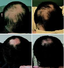 dht and hair loss is it really the main cause top hair loss