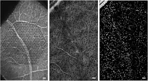 anatomical identification of extracellularly recorded cells in