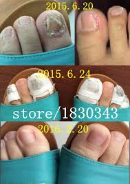 online get cheap nail fungal infection aliexpress com alibaba group