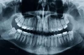 chambre syndicale dentaire hygiène bucco dentaire des risques trop souvent négligés