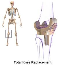 Planning Pic Knee Replacement Wikipedia