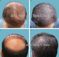 new hair growth discoveries new research shows hair growth possible in those with severe