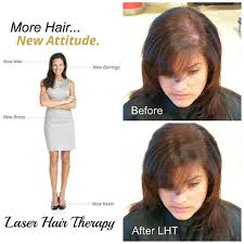 Laser Hair Growth Hat 97557261 Jpg