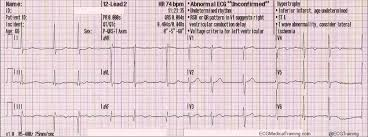 strain pattern ecg meaning importance of lead avl in stemi recognition ecg medical training