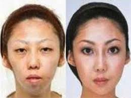before and after feng 39 s wife spent over 100 000 in plastic surgery to modify