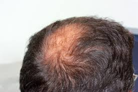 pubic hair disappearing hair loss nuhart the home of hair restoration transplant
