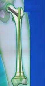 trochanteric intramedullary nail proximal distal trigen