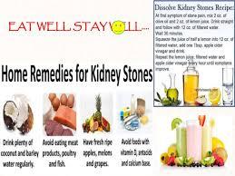 presentation kidney stone final
