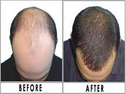 hair bonding hair bonding in patna bihar best hair bonding centre in patna
