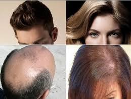 obat rambut penumbuh rambut botak mengatasi rambut rontok alami rambut botak tumbuh dengan cepat