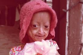 Adalia Rose Meme - adalia rose 6 year old with premature aging promotes fundraiser