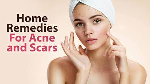 Face Mapping Acne Home Remedy For Acne And Scars The Beauty Mantra Youtube