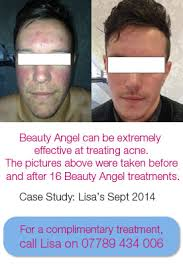 blu light therapy for acne acne light treatment in surrey blue light therapy for acne in surrey