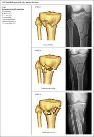 Fibular Avulsion Fractures Of The Tibia Fibula Musculoskeletal Key