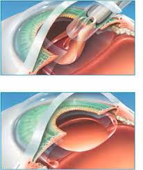 light streaks after cataract surgery cataract surgery gavin herbert eye institute cornea surgery