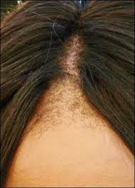 new hair growth discoveries 15 best hair regrowth naturally images on pinterest hair