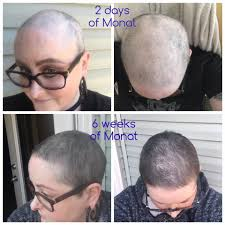 how to grow out hair after cancer an update on my hair growing journey after battling with breast