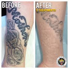 laser tattoo removal course adelaide best tattoo 2017