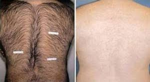 laser hair removal exclusively faces winchester va
