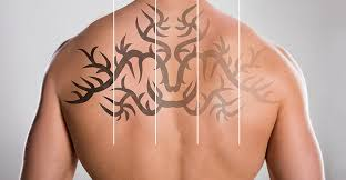 laser tattoo removal cincinnati advanced laser and cosmetic center