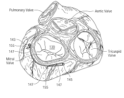 patent us7264587 endoscopic subxiphoid surgical procedures