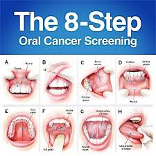 Cancer On Floor Of Mouth Pictures by Everyone Should Acknowledge The Importance Of The Regular Oral