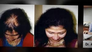 alopecia treatment balding baldness dr ari chennai dr