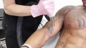 tattoo chest and arm chest and arm laser tattoo removal on vimeo