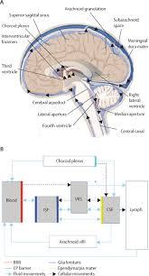 headache arising from idiopathic changes in csf pressure the