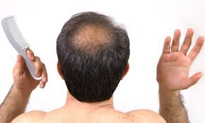 home remedies for hair loss for over 50 50 home remedies for baldness home remedies