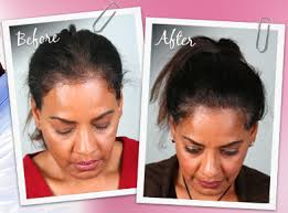 hair style wo comen receding hair transplant surgery healthy new hair
