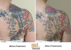 natural tattoo removal chemical peels tattoo removal before