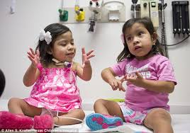 Seeking Conjoined Houston Doctors Marvel At Progress Of Conjoined Who Were