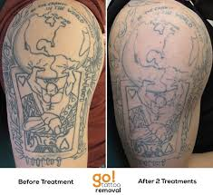 laser tattoo removal progress photos allentown pa
