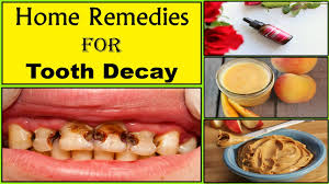 eliminate tooth decay within 20 days with this simple homemade