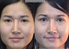 eyelids blepharoplasty richmond plastics