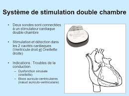 pacemaker chambre mode de stimulation managed ventricular pacing mvp ppt télécharger