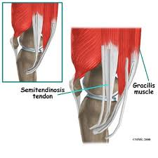 Tendons In The Shoulder Diagram Acl Hamstring Tendon Graft Reconstruction Eorthopod Com