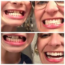 whiter teeth naturally u2014 kris u0026jack