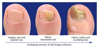 toenail fungus laser treatment without medications