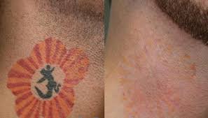 tattoo removal at suddenly slimmer med spa phoenix scottsdale az