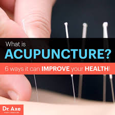 Acupuncture Meme - 6 ways acupuncture can improve your health dr axe