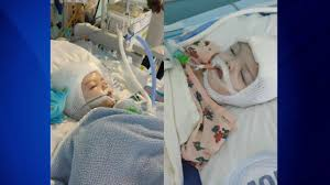separated twins jadon and anias mcdonald move to rehab after