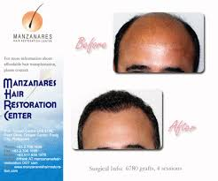 hair transplant costs in the philippines hair loss forum hair transplant in the philippines asia and the